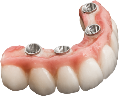 Full Arch Implant Cases